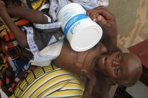 Bébé Valérie stupéfaite - Centre de Ndelele au CAMEROUN
