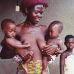 Claire et Carisse sauvée de la malnutrition grâce à S.O.S. BOîTES DE LAIT
