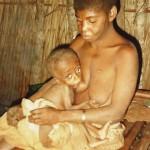 Bébé atteint de malnutrition aiguë dans notre centre de DJOUT au CAMEROUN