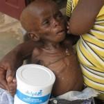 Grâce à votre lait bébé Valérie a des chances de s'en sortir - Centre de Ndelele au CAMEROUN