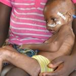 Peter atteint de malnutrition sévère - Centre de Davougon au BENIN