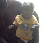 Enfant malnutri