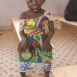 Julienne ASTA née avec un anomalie. Son cas necessite une intervention chirurgicale